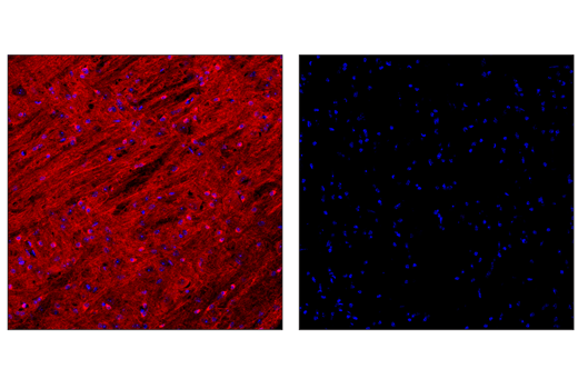 Confocal immunofluorescent analysis of wild-type mouse pons untreated (left) or treated with λ-phosphatase (right) using Phospho-Tau (Ser404) (D2Z4G) Rabbit mAb (Alexa Fluor<sup>®</sup> 647 Conjugate) (red). Sections were mounted in ProLong<sup>®</sup> Gold Antifade Reagent with DAPI #8961.