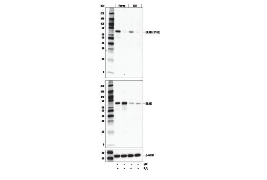 Polyclonal Antibody - Phospho-BLNK (Thr152) Antibody - Western Blotting, UniProt ID Q8WV28, Entrez ID 29760 #49183 - Primary Antibodies