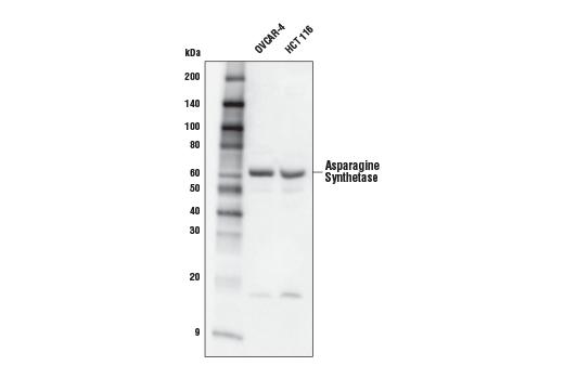 Polyclonal Antibody - Asparagine Synthetase Antibody - Western Blotting, UniProt ID P08243, Entrez ID 440 #20843