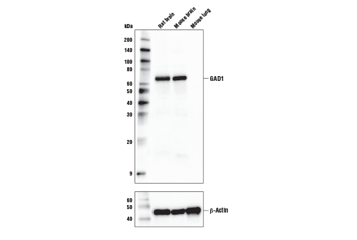 Western blot analysis of extracts from mouse and rat tissue using GAD1 (D1F2M) Rabbit mAb (upper) and B-Actin (D6A8) Rabbit mAb #8457 (lower).