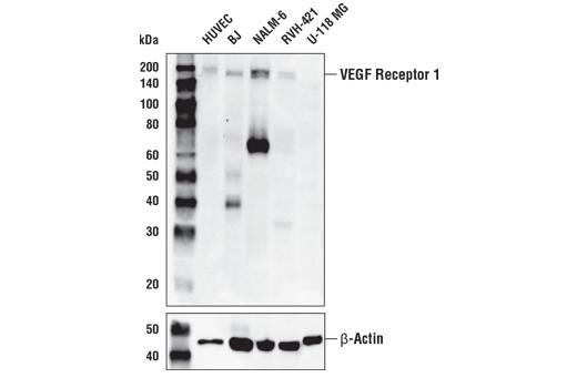 Monoclonal Antibody - VEGF Receptor 1 (E7T9H) Rabbit mAb - Western Blotting, UniProt ID P17948, Entrez ID 2321 #64094, Angiogenesis
