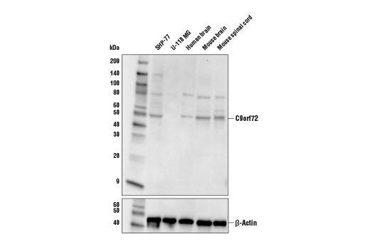 Western blot analysis of extracts from various cell lines and tissues using C9orf72 Antibody (upper) and β-Actin (D6A8) Rabbit mAb #8457 (lower).