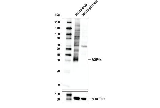 Western blot analysis of extracts from mouse brain and pancreas using AQP4x Antibody (Rodent Specific) (upper) and α-Actinin (D6F6) XP<sup>®</sup> Rabbit mAb #6487 as a loading control (lower).