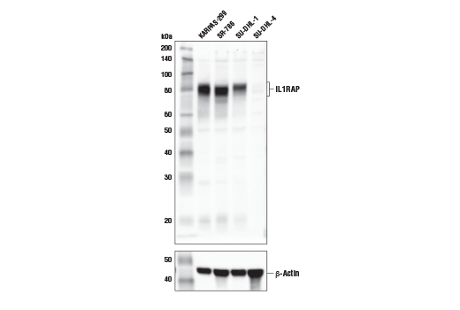 Western blot analysis of extracts from various cell lines using IL1RAP (E2G6A) Rabbit mAb (upper) and β-Actin (D6A8) Rabbit mAb #8457 (lower). As expected, IL1RAP protein expression is not detected in SU-DHL-4 cells. KARPAS-299 cell line source: Dr. Abraham Karpas at the University of Cambridge.</p><p charset=