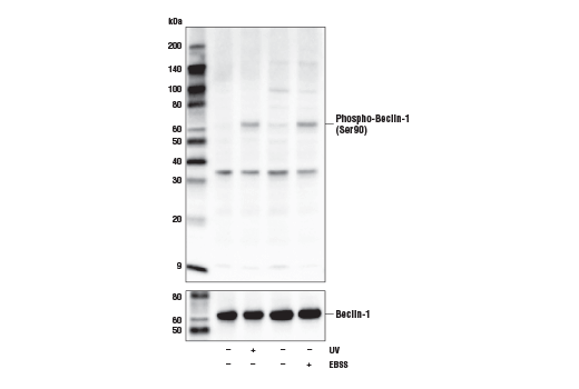 Western blot analysis of extracts from UACC-62 cells, untreated (-), UV-treated (100 mJ/cm<sup>2</sup>, 15 min recovery; +), or starved with Earle's Balanced Salt Solution (EBSS, 15 min; +), using Phospho-Beclin-1 (Ser90) Antibody (upper) or Beclin-1 (D40C5) Rabbit mAb #3495 (lower).