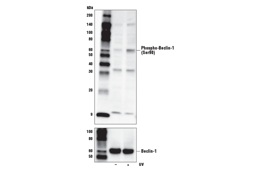 Western blot analysis of extracts from ACHN cells, untreated (-) or UV-treated (100 mJ/cm<sup>2</sup>, 1 hr recovery; +), using Phospho-Beclin-1 (Ser90) Antibody (upper) or Beclin-1 (D40C5) Rabbit mAb #3495 (lower).