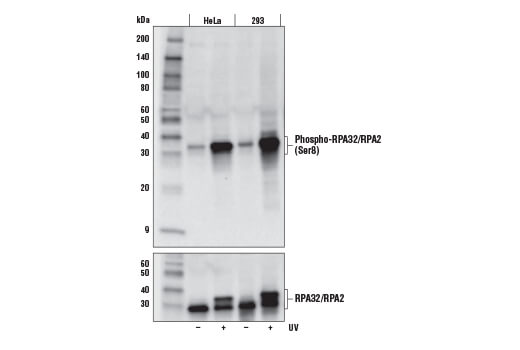 Western blot analysis of extracts from HeLa and 293 cells, untreated or treated with UV (100 mJ/cm<sup>2</sup>, 2 hr recovery), using Phospho-RPA32 (Ser8) (E5A2F) Rabbit mAb (upper) or total RPA32/RPA2 Antibody #52448 (lower).