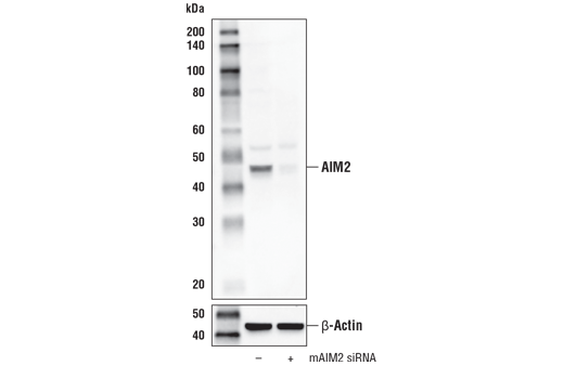Western blot analysis of extracts from J774A.1 cells, mock transfected (-) or transfected with mouse AIM2 siRNA (mAIM siRNA; +), using AIM2 Antibody (Mouse Specific) (upper) or β-Actin (D6A8) Rabbit mAb #8457 (lower).