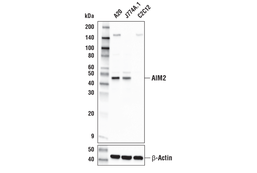 Western blot analysis of extracts from A20, J774A.1, and C2C12 cell lines using AIM2 Antibody (Mouse Specific) (upper) or β-Actin (D6A8) Rabbit mAb #8457 (lower).