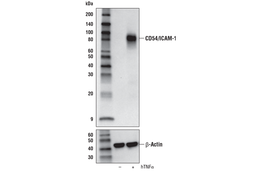 Western blot analysis of extracts from A549 cells, untreated (-) or treated with hTNF-α #8902 (10 ng/mL, 6 hr; +), using CD54/ICAM-1 (E3Q9N) XP<sup>®</sup> Rabbit mAb (upper) or β-Actin (D6A8) Rabbit mAb #8457 (lower).