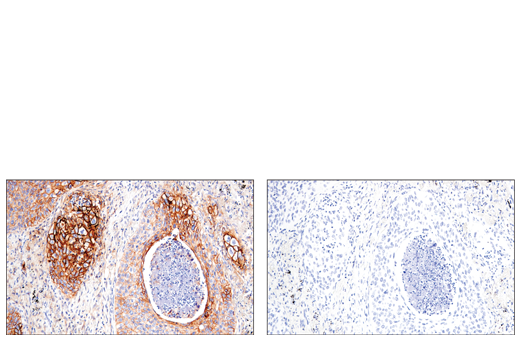 Immunohistochemical analysis of paraffin-embedded human squamous cell lung carcinoma using CD54/ICAM-1 (E3Q9N) XP® Rabbit mAb (left) compared to concentration matched Rabbit (DA1E) mAb IgG XP<sup>®</sup> Isotype Control #3900 (right).