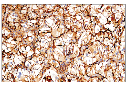 Immunohistochemical analysis of paraffin-embedded human renal cell carcinoma using CD54/ICAM-1 (E3Q9N) XP<sup>®</sup> Rabbit mAb.