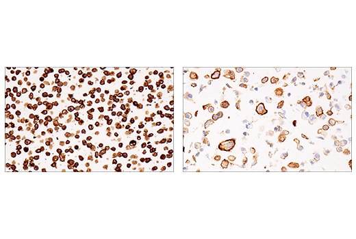 Immunohistochemical analysis of paraffin-embedded Daudi cell pellet (left, high-expressing) or A549 cell pellet (right, low-expressing) using CD38 (E7Z8C) XP<sup>®</sup> Rabbit mAb.