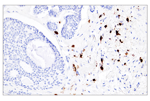 Immunohistochemical analysis of paraffin-embedded human adenoid cystic carcinoma of the trachea using CD38 (E7Z8C) XP<sup>®</sup> Rabbit mAb.