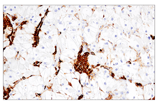 Immunohistochemical analysis of paraffin-embedded human renal cell carcinoma using CD38 (E7Z8C) XP<sup>®</sup> Rabbit mAb.