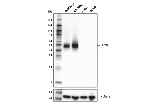 Western blot analysis of extracts from various cell lines using CD200 (E5I9V) XP<sup>® </sup>Rabbit mAb (upper) or β-Actin (D6A8) Rabbit mAb #8457 (lower).