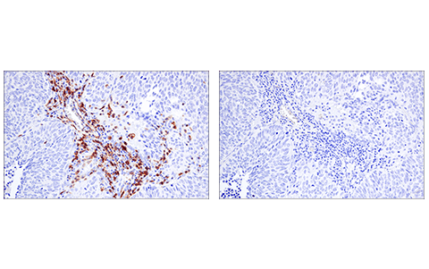 Immunohistochemical analysis of paraffin-embedded human lung adenocarcinoma using LAT (E3U6J) XP<sup>® </sup>Rabbit mAb (left) compared to concentration-matched Rabbit (DA1E) mAb IgG XP<sup>®</sup> Isotype Control #3900 (right).