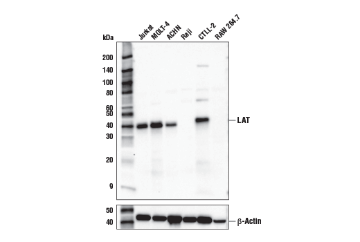 Western blot analysis of extracts from various cell lines using LAT (E3U6J) XP<sup>® </sup>Rabbit mAb (upper) or β-Actin (D6A8) Rabbit mAb #8457 (lower).