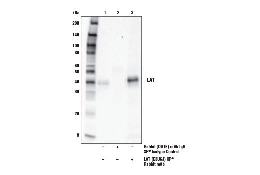 Immunoprecipitation Image 1: LAT (E3U6J) XP® Rabbit mAb