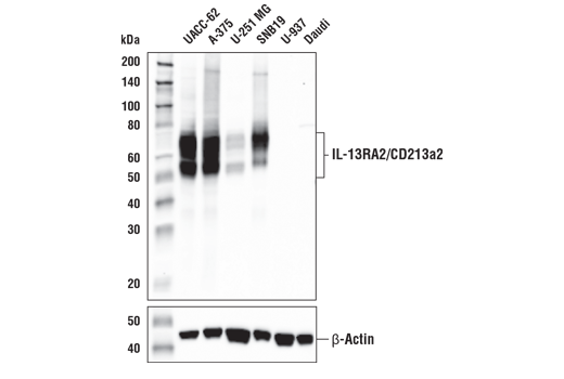 Western blot analysis of extracts from various cell lines using IL-13RA2/CD213a2 (E7U7B) Rabbit mAb (upper) and β-Actin (D6A8) Rabbit mAb #8457 (lower). As expected, IL-13RA2/CD213a2 protein is not expressed in either U-937 or Daudi cells.