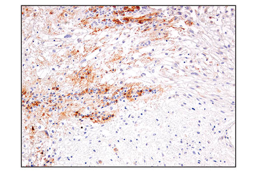 Immunohistochemical analysis of paraffin-embedded human astrocytoma using IL-13RA2/CD213a2 (E7U7B) Rabbit mAb.