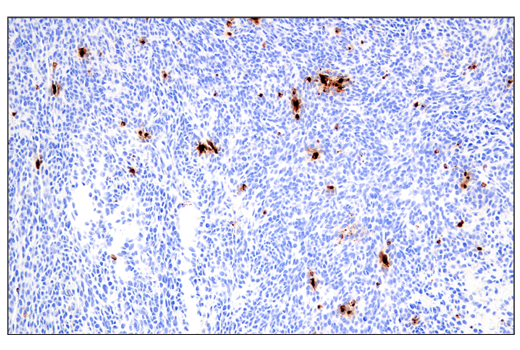 Immunohistochemical analysis of paraffin-embedded CT26.WT syngeneic tumor using Granzyme B (E5V2L) Rabbit mAb (Mouse Specific) performed on the Leica<sup>®</sup> BOND™ Rx.