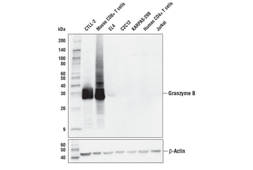 Western blot analysis of extracts from various mouse and human cells using Granzyme B (E5V2L) Rabbit mAb (Mouse Specific) (upper) or β-Actin (D6A8) Rabbit mAb #8457 (lower). As expected, Granzyme B (E5V2L) Rabbit mAb (Mouse Specific) only detects Granzyme B in mouse primary CD8+ T cells and mouse T cell lines. CD8+ T cells were purified from mouse spleens or human blood and stimulated for 7 days using beads coated with CD3 and CD28 antibodies in the presence of Mouse Interleukin-2 (mIL-2) #5201 (20 ng/ml) or Human Interleukin-2 (hIL-2) #8907 (20 ng/ml). KARPAS cell line source: Dr. Abraham Karpas at the University of Cambridge.