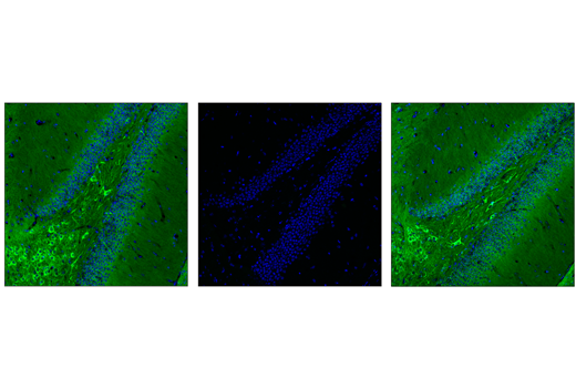 Confocal immunofluorescent analysis of dentate gyrus in wild-type mouse brain using Phospho-Tau (Thr205) (E7D3E) Rabbit mAb (Alexa Fluor<sup>®</sup> 488 Conjugate) (green). Antibody was pre-incubated with a non-phospho-Tau (Thr205) peptide (left), a phospho-Tau (Thr205) peptide (middle), or without peptide (right) to confirm phospho-specificity. Samples were mounted in ProLong<sup>®</sup> Gold Antifade Reagent with DAPI #8961 (blue).