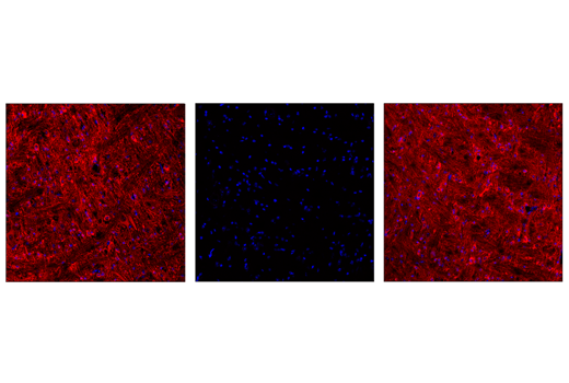 Confocal immunofluorescent analysis of the pons region in wild-type mouse brain using Phospho-Tau (Thr205) (E7D3E) Rabbit mAb (Alexa Fluor<sup>®</sup> 647 Conjugate) (red). Antibody was pre-incubated with a non-phospho-Tau (Thr205) peptide (left), a phospho-Tau (Thr205) peptide (middle), or without peptide (right) to confirm phospho-specificity. Samples were mounted in ProLong<sup>®</sup> Gold Antifade Reagent with DAPI #8961 (blue).