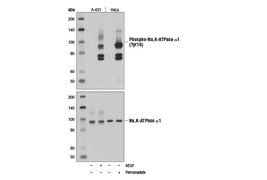 Western blot analysis of extracts from A-431 cells, untreated (-) or treated with Human Epidermal Growth Factor (hEGF) #8916 (100 ng/ml, 2 min; +), and HeLa cells, untreated (-) or pervanadate-treated (1 mM, 15 min; +), using Phospho-Na,K-ATPase α1 (Tyr10) (E1Y9C) Rabbit mAb (upper) and Na,K-ATPase Antibody #3010 (lower).