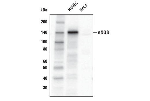 Western blot analysis of extracts from HUVEC and HeLa cells using eNOS (D9A5L) Rabbit mAb (Biotinylated).