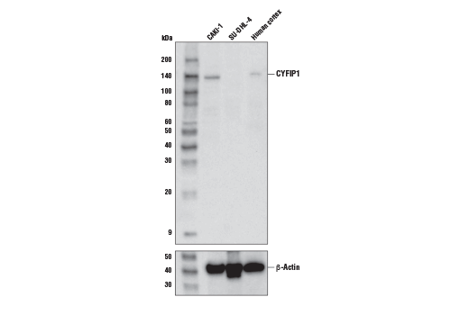 Western blot analysis of CAKI-1 and SU-DHL-4 cells, and human brain extracts, using CYFIP1 Antibody (upper) and β-Actin (D6A8) Rabbit mAb #8457 (lower).