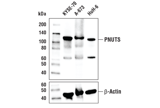Western blot analysis of extracts from KYSE-70, A-673, and HuH-6 cells using PNUTS (D8H5J) Rabbit mAb. β-actin (D6A8) Rabbit mAb #8457 was used as a loading control.