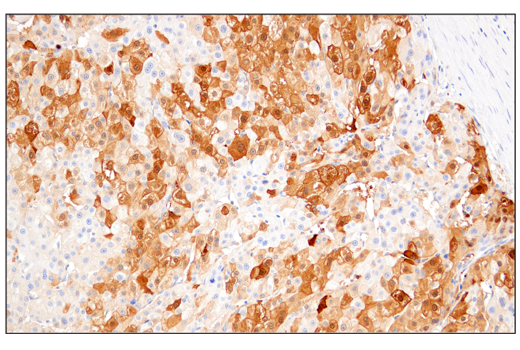 Immunohistochemical analysis of paraffin-embedded human hepatocellular carcinoma using Arginase-1 (E4U1I) Mouse mAb.