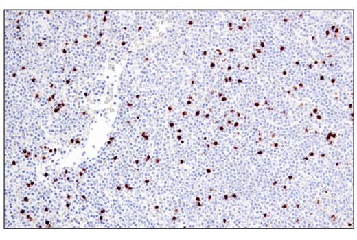Immunohistochemical analysis of paraffin-embedded human non-Hodgkin's lymphoma using Arginase-1 (E4U1I) Mouse mAb.
