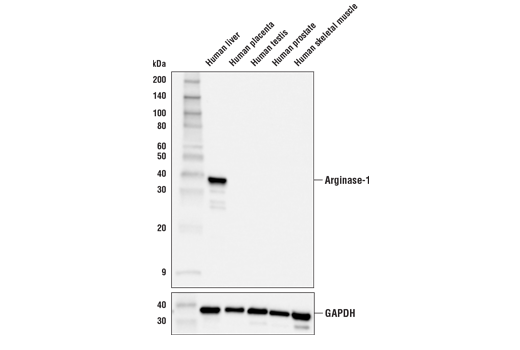 Western blot analysis of extracts from various human tissues using Arginase-1 (E4U1I) Mouse mAb (upper) or GAPDH (D16H11) XP<sup>®</sup> Rabbit mAb #5174 (lower).