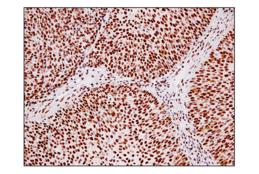 Immunohistochemical analysis of paraffin-embedded human urothelial carcinoma using Ape1 (E5Y2C) Rabbit mAb.