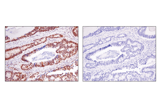 Immunohistochemical analysis of paraffin-embedded human colon carcinoma using Ape1 (E5Y2C) Rabbit mAb (left) compared to concentration-matched Rabbit (DA1E) mAb IgG XP® Isotype Control #3900 (right).