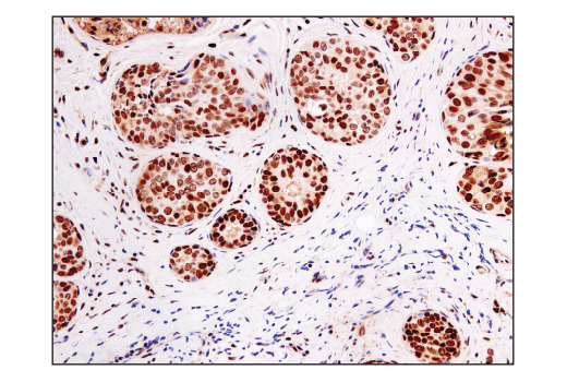 Immunohistochemical analysis of paraffin-embedded human ductal breast carcinoma using Ape1 (E5Y2C) Rabbit mAb.