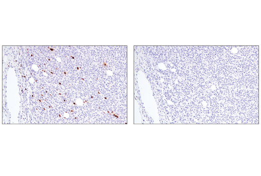 Immunohistochemical analysis of paraffin-embedded CT26.WT syngeneic tumor using Perforin (E3W4I) Rabbit mAb (left) compared to concentration matched Rabbit (DA1E) mAb IgG XP<sup>®</sup> Isotype Control #3900 (right).