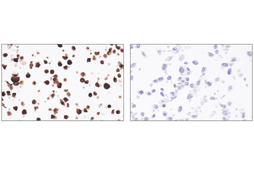 Immunohistochemical analysis of paraffin-embedded CTLL-2 cell pellet (left, positive) or 3T3 cell pellet (right, negative) using Perforin (E3W4I) Rabbit mAb.