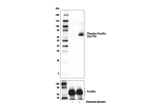 Western blot analysis of extracts from HeLa cells in suspension, untreated (-) or induced attachment to fibronectin-coated plate surface (10 μg/ml, 1 hr; +), using Phospho-Paxillin (Tyr118) (E9U9F) Rabbit mAb (upper) and Paxillin (D9G12)<sup> </sup>Rabbit mAb #12065 (lower).
