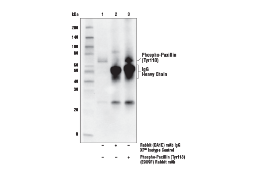 Immunoprecipitation of Phospho-Paxillin (Tyr118) protein from HeLa cells induced attachment to fibronectin-coated plate surface (10 μg/ml, 1 hr). Lane 1 is 10% input, lane 2 is Rabbit (DA1E) mAb IgG XP<sup>®</sup> Isotype Control #3900, and lane 3 is Phospho-Paxillin (Tyr118) (E9U9F) Rabbit mAb. Western blot analysis was performed using Phospho-Paxillin (Tyr118) (E9U9F)<sup> </sup>Rabbit mAb. Anti-rabbit IgG, HRP-linked Antibody #7074 was used as a secondary antibody.