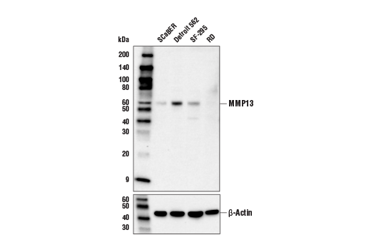 Western blot analysis of extracts from various cell lines using MMP-13 (E4W3T) Rabbit mAb (upper) and β-Actin (D6A8)<sup> </sup>Rabbit mAb #8457 (lower).