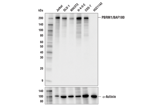 Western blot analysis of extracts from various cell lines using PBRM1 (E6N2K) Mouse mAb (upper) or α-Actinin (D6F6) XP<sup>®</sup> Rabbit mAb #6487 (lower). As expected, HCC1143 cells are negative for PBRM1/BAF180 expression.