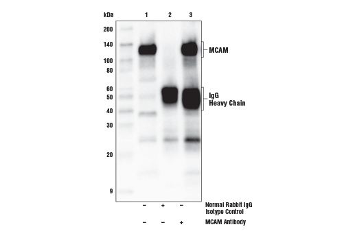 Immunoprecipitation of MCAM protein from NCI-H460 cell extracts. Lane 1 is 10% input, lane 2 is Normal Rabbit IgG #2729, and lane 3 is MCAM Antibody. Western blot analysis was performed using MCAM Antibody as the primary antibody. Anti-rabbit IgG, HRP-linked Antibody #7074 was used as a secondary antibody.