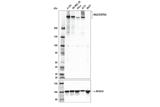 Western blot analysis of extracts from various cell lines using NG2/CSPG4 Antibody (upper) and α-Actinin (D6F6) XP<sup>®</sup> Rabbit mAb #6487 (lower). As expected, NG2/CSPG4 protein is not expressed in MCF7 cells.