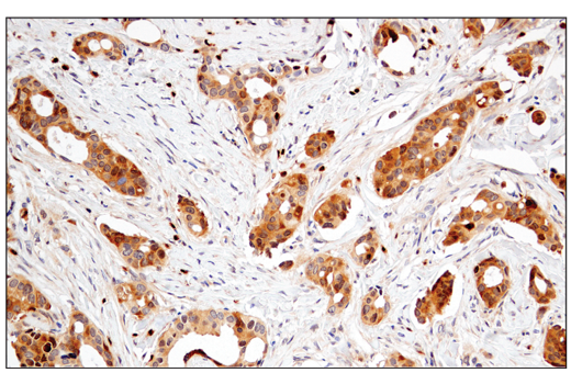 Immunohistochemical analysis of paraffin-embedded human ductal breast carcinoma using Enolase-2 (E2H9X) XP<sup>®</sup> Rabbit mAb.