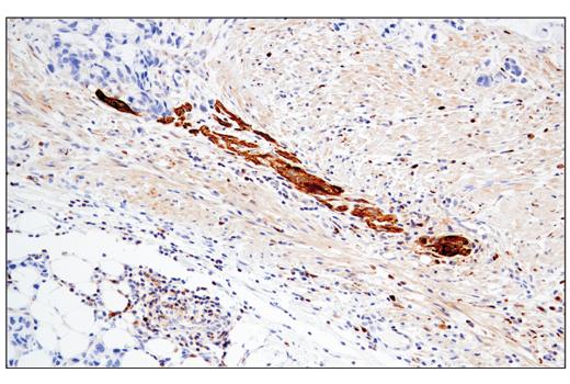 Immunohistochemical analysis of paraffin-embedded human colon adenocarcinoma using Enolase-2 (E2H9X) XP<sup>®</sup> Rabbit mAb.