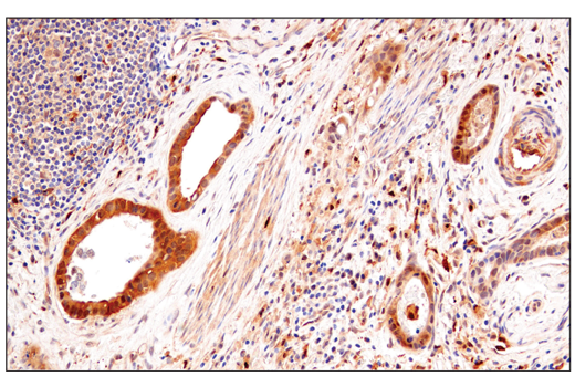 Immunohistochemical analysis of paraffin-embedded human mucoepidermoid carcinoma of the larynx using Enolase-2 (E2H9X) XP<sup>®</sup> Rabbit mAb.